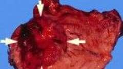 Аденокарцинома шлунку - якої чекати прогноз?