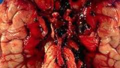 Мозгова аневризма (судин мозку) і її лікування