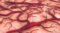 Ангіопатія при цукровому діабеті