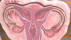 Аномалії розвитку матки