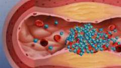 Антиагреганти - препарати для розрідження крові