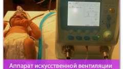 Апарат штучної вентиляції легенів новонароджених fabian. Огляд товару
