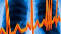 Аритмія серця і її лікування
