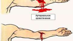 Артеріальний кровотеча: як надати першу допомогу?
