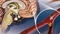 Атеросклероз судин мозку і його симптоми