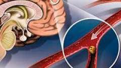 Атеросклероз церебральних судин головного мозку