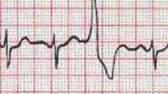 Симптоми екстрасистолії серця
