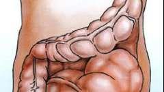 Хвороба гіршпрунга - вроджене захворювання