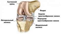 Болі в колінному суглобі