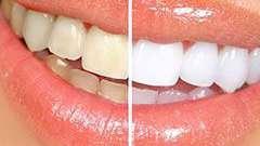 Чим небезпечне відбілювання зубів?