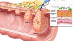 Скільки можна прожити з раком шлунка?