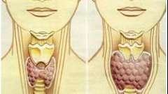 Що це таке неоднорідна структура щитовидної залози
