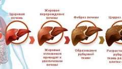 Що означає діагноз - декомпенсація цирозу печінки?