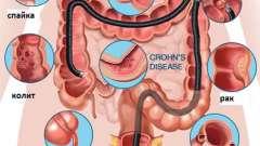 Чи можливо перевірити кишечник без колоноскопії і як це зробити?