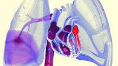Що таке легенева емболія?