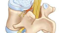 Що таке протрузія дисків хребта поперекового відділу? Способи лікування і профілактика.