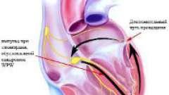 Що таке синдром передчасного збудження шлуночків