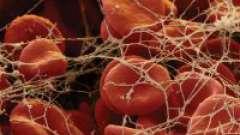 Що таке згортання крові і як її визначити