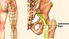 Защемлення сідничного нерва і методи його лікування