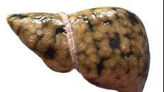 Що таке жировий гепатоз печінки?