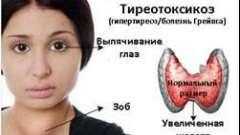 Що за порушення тиреотоксикоз і як він лікується