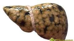 Щоб не стало пізно пити боржомі - лікування і дієта при жировий гепатоз печінки