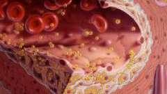 Діагностика і ознаки атеросклерозу судин