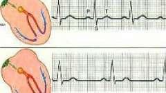 Діагностика і ознаки тахікардії серця