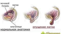 Діагностика опущення матки і сучасні методики її лікування за допомогою народних засобів