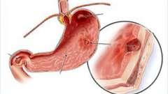 Основи дієти при дуоденіт і гастриті