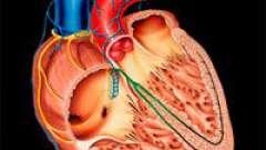 Дилатаційна кардіоміопатія (дкмп) і її лікування