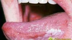 Належне лікування лейкоплакії з використанням народних методів