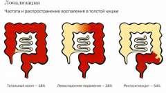 Фактори розвитку псевдомембранозного коліту і його лікування
