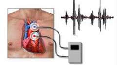 Фонокардіографія (фкг): що це, діагностичні можливості, інтерпретація