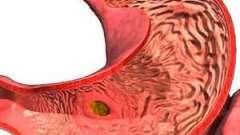 Гастрит - лікування та діагностика