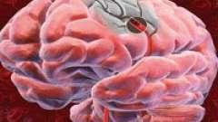 Наслідки ішемічного інсульту головного мозку