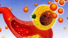 Гіперхолестеринемія і її лікування
