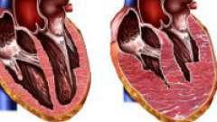 Гіпертрофічна кардіоміопатія у дітей і дорослих
