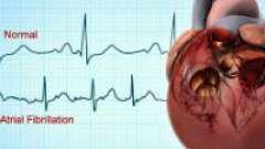 Симптоми різних форм кардіоміопатії і її діагностика