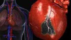 Основні причини обширного інфаркту міокарда