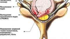 Грижа шийного відділу хребта