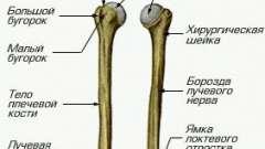 Перелом плечової кістки