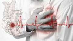 Інфаркт міокарда