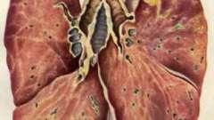 Інкубаційний період туберкульозу, його діагностика та лікування
