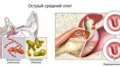Ефективність лікування отиту антибіотиками