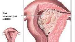 Ефективні препарати для лікування міоми матки