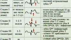 Екг ознаки інфаркту міокарда. Картинки і пояснення
