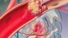 Емболія судин, артерій: види, симптоми, лікування, профілактика