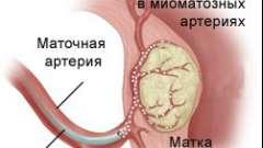 Емболізація міоми матки