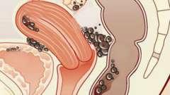 Ендометріоз і вагітність